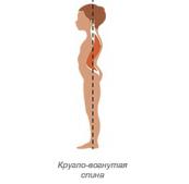 kruglovognutaya-spina